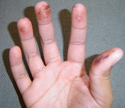 Apply 1 mL silver nitrate liberally and messily to one hand.  Wash vigorously.  Note observations.